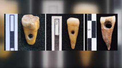Çatalhöyük'te kasıtlı olarak değiştirilmiş insan dişlerinin ilk örnekleri bulundu